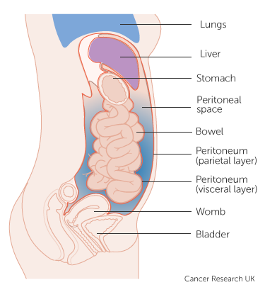 peritoneal cancer metastasis symptoms
