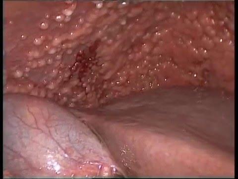 human papilloma virusu nedir hpv to herpes