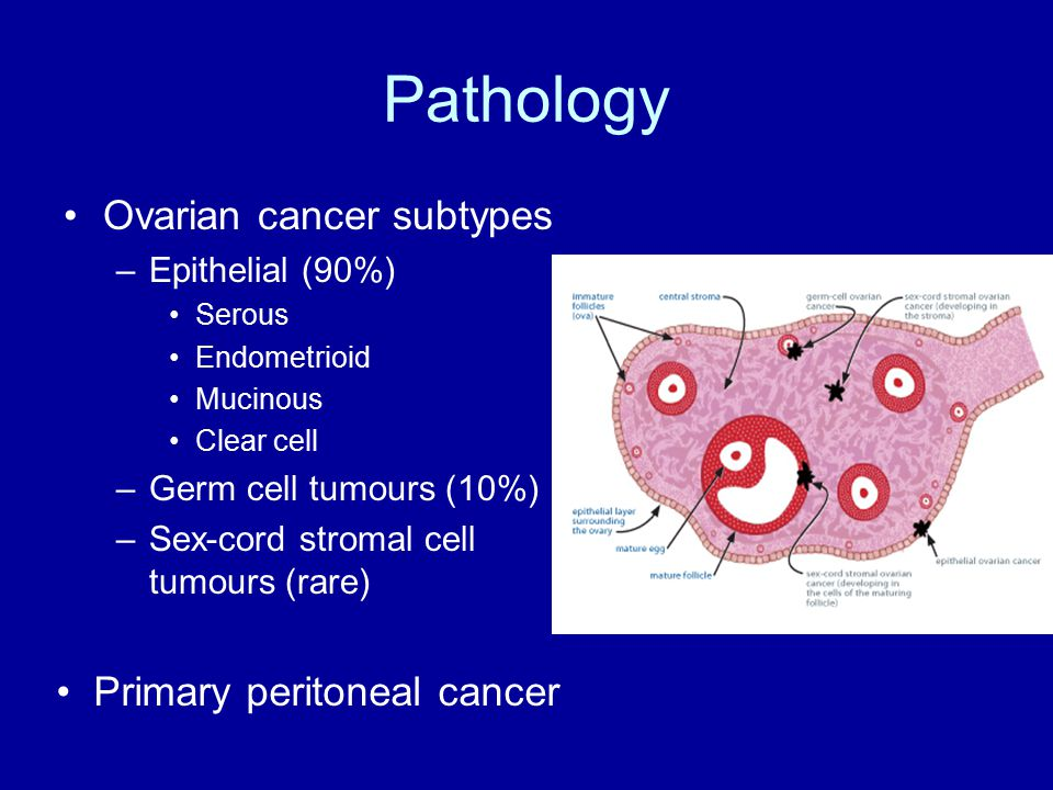peritoneal cancer pathophysiology