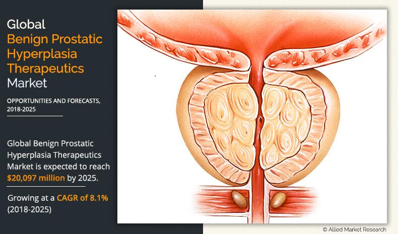 Prostate spiming dispozitive