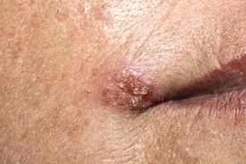papiloma humano sus caracteristicas medicamente anti paraziti