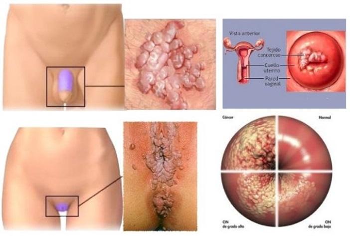 intraductal papilloma excisional biopsy remede de grand mere contre le papillomavirus