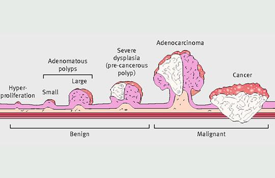 rectal cancer johns hopkins cancer de pancreas quais os sintomas
