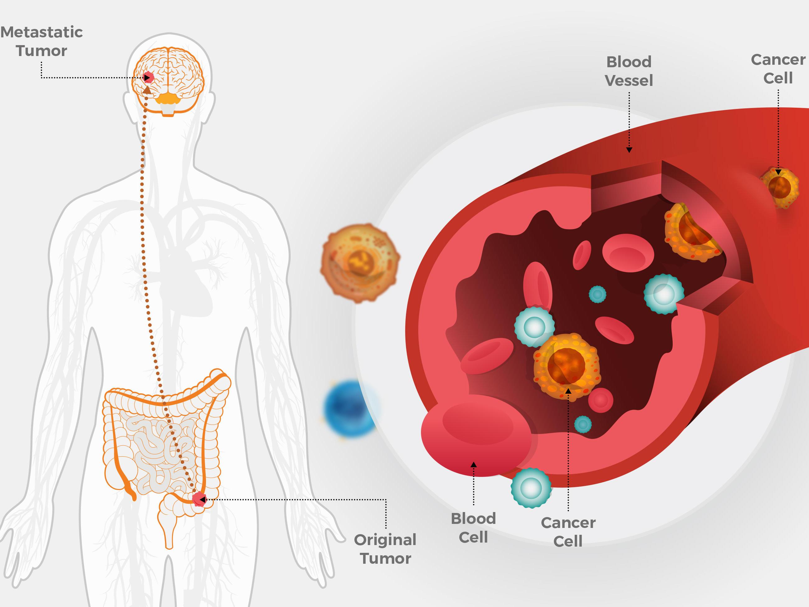 hpv treatment interferon hpv latest research