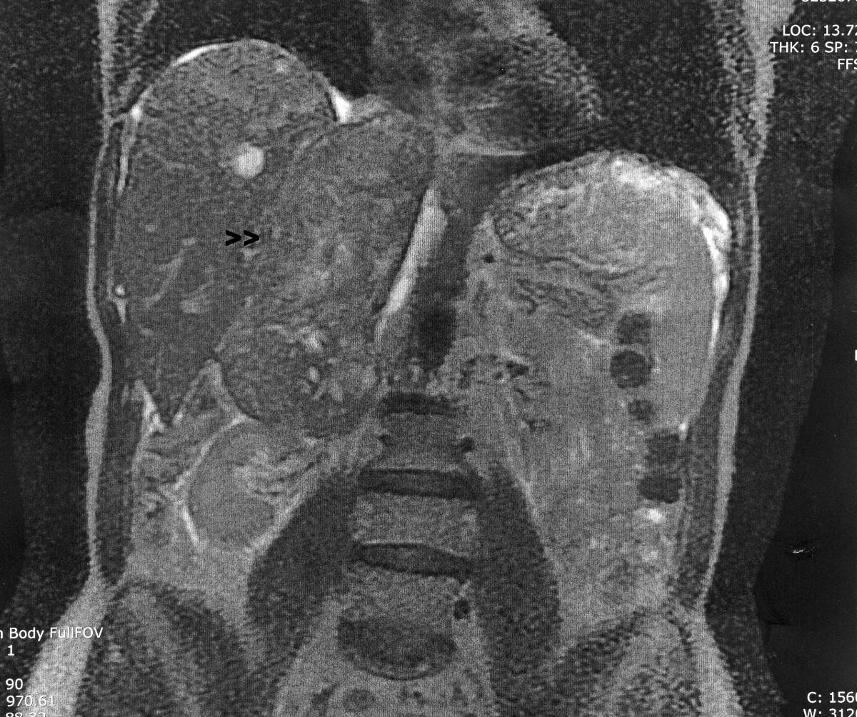 papilloma virus lesioni precancerose oxiuros en bb