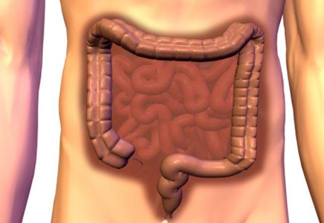 Care sunt primele simptome ale cancerului de colon şi cum poate fi depistat
