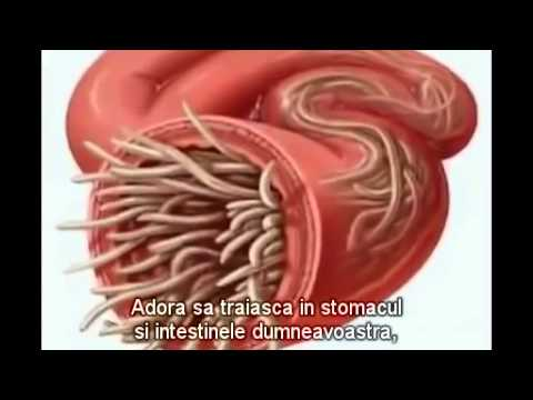 simptome paraziti in corp