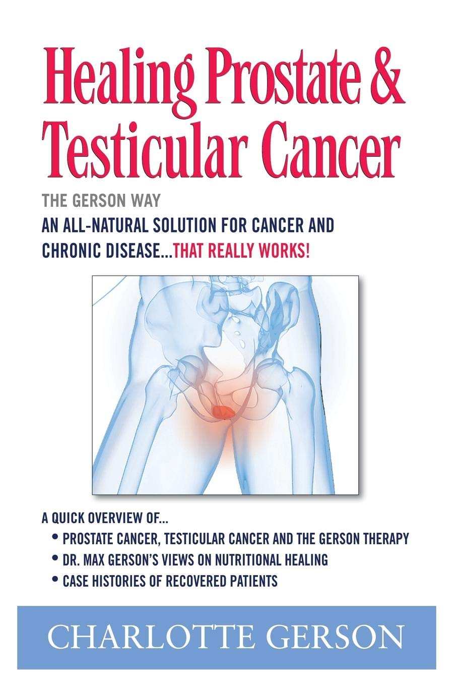 testicular cancer of the prostate papilloma gola intervento