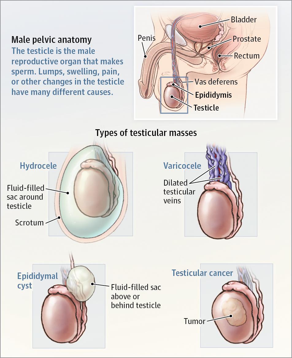 testicular cancer vs epididymal cyst schistosomiasis jamaica