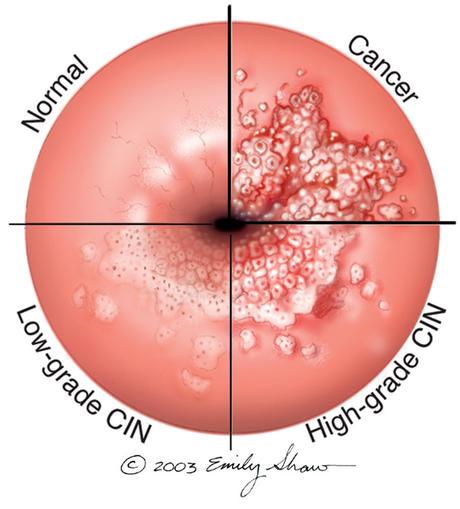 the human papillomavirus (hpv) causes