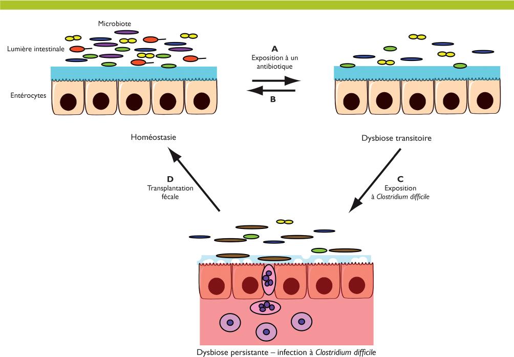 hpv can cause cervical cancer gemoderivate pentru oxiuri
