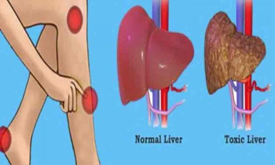 Alimentele care vă curăță ficatul de toxine și grăsimi