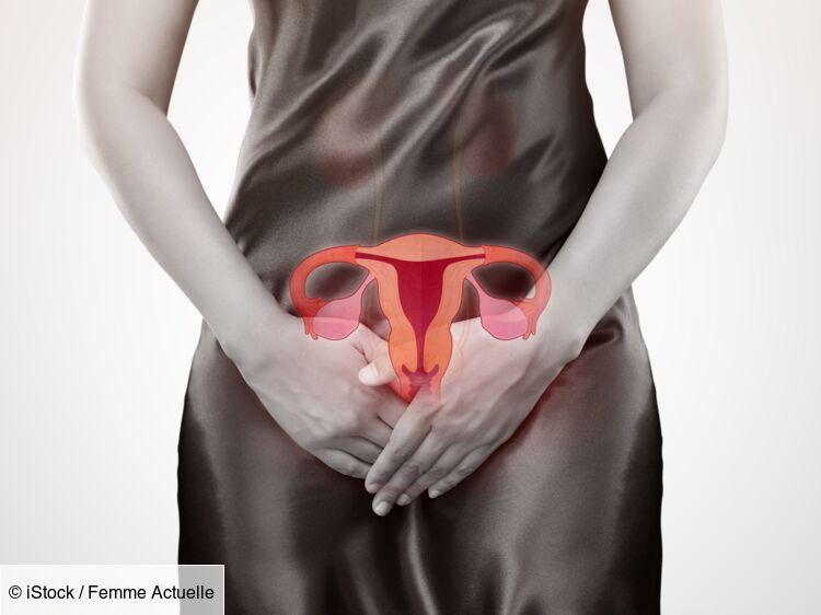 verrue papillomavirus femme
