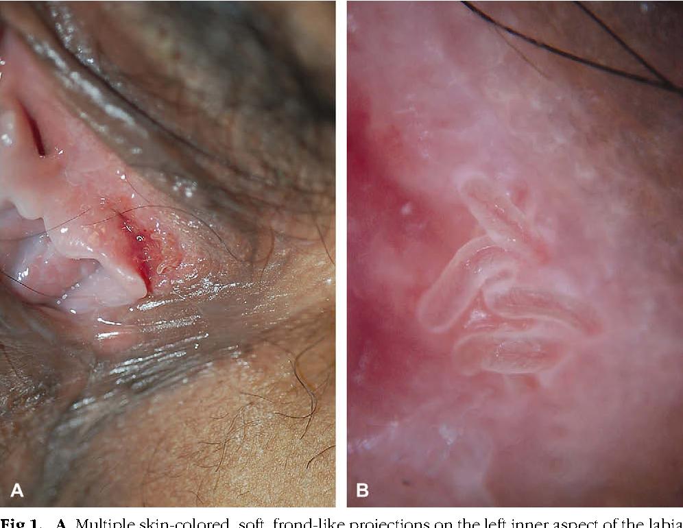 hpv cancer na boca virus del papiloma causas
