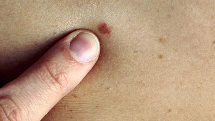 vindecarea cancerului de piele cancer de ficat simptome