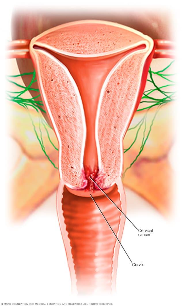 virus de papiloma humano cancer cuello uterino
