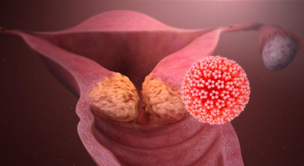 cancer de col uterin vaccin hpv