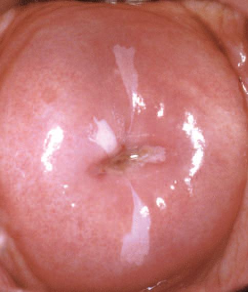 virus del papiloma humano en el utero
