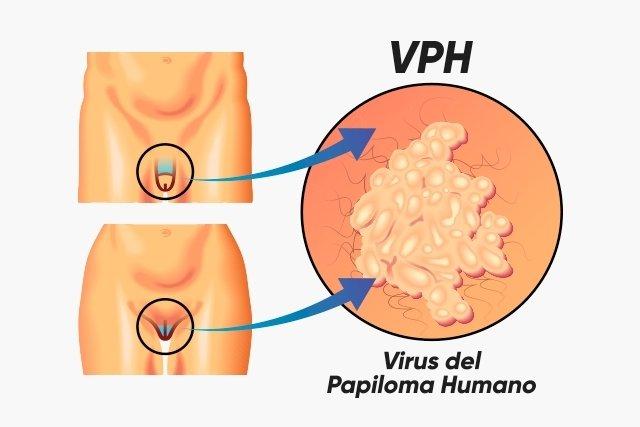 virus del papiloma humano en mujeres de alto riesgo