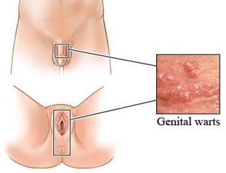 virus del papiloma sintomas en mujeres hpv virus gel