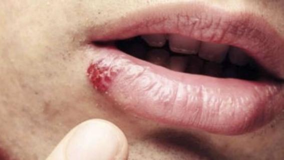 virus papiloma humano en ano