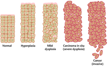 virus papiloma humano y preservativo operatie cancer de col uterin pret