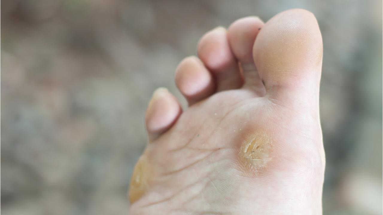 wart on foot growing