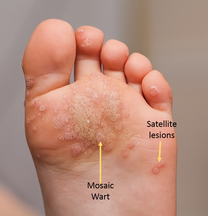 wart on foot under skin