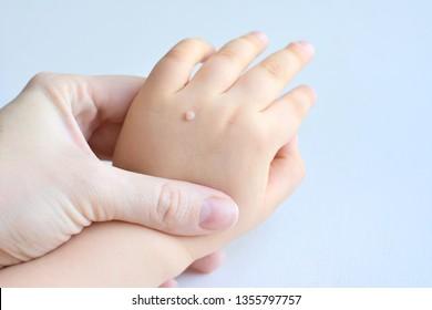 wart on hand skin