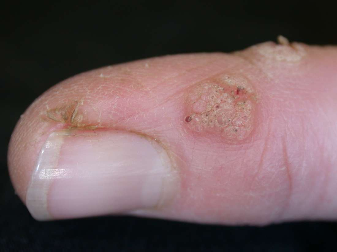 wart skin blister genital hpv signs and symptoms