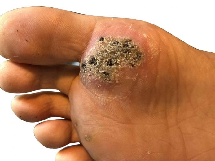 wart to foot