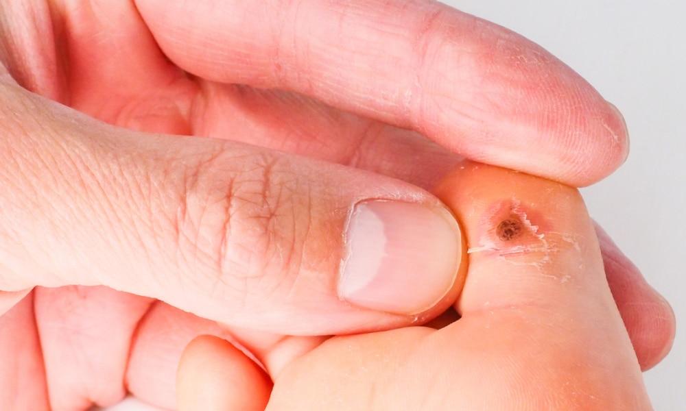 papilloma uvula treatment cancer de pancreas recomendaciones nutricionales