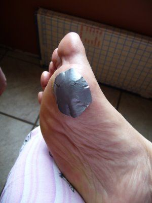 warts cure duct tape