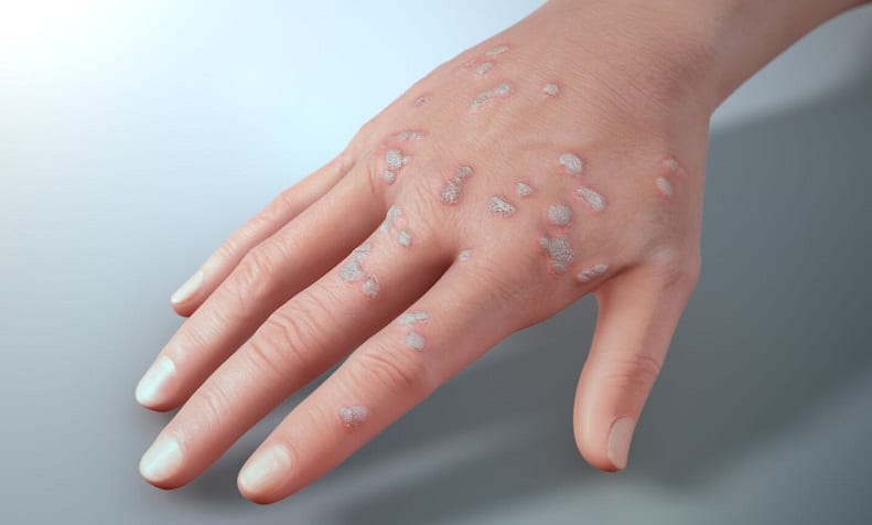 warts on hands and legs