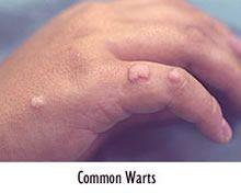 human papillomavirus infection and hiv