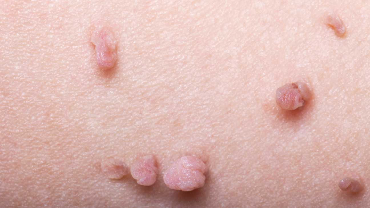 warts on skin genital cancer ultima faza morfina