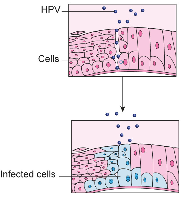 what are the types of hpv that cause cervical cancer vacanta detoxifiere romania