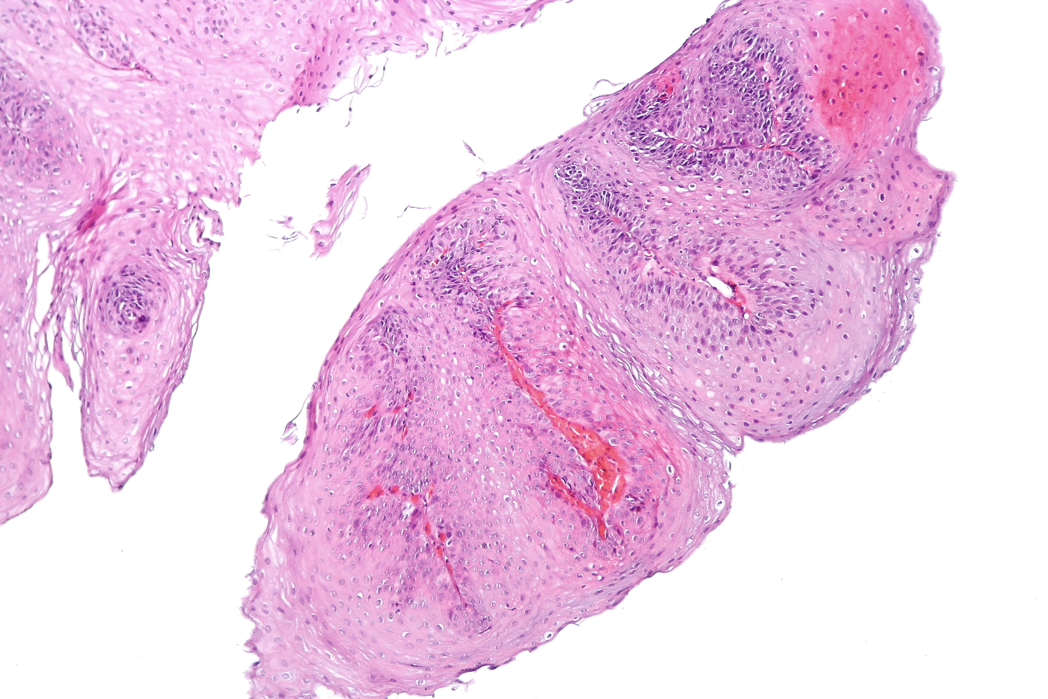 cancer pulmonar antofagasta
