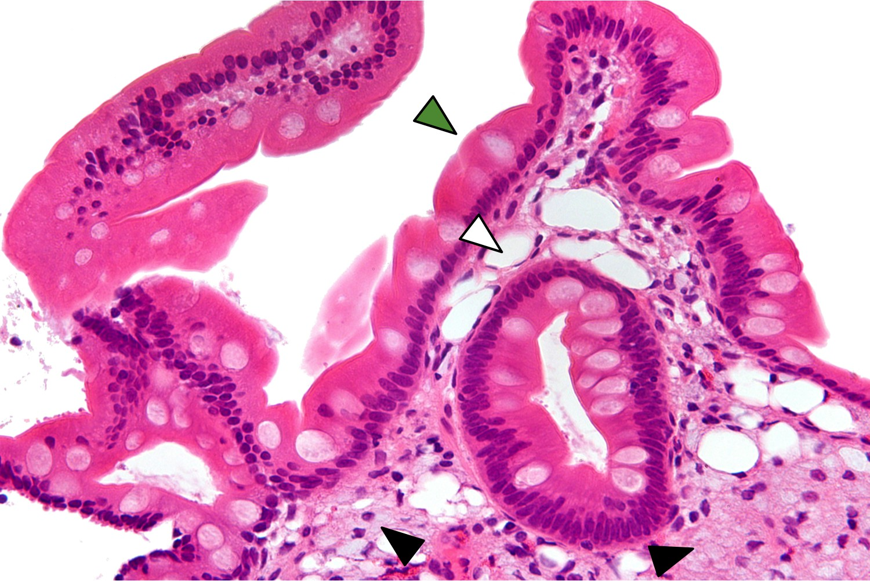 Gastroenterită - Wikipedia