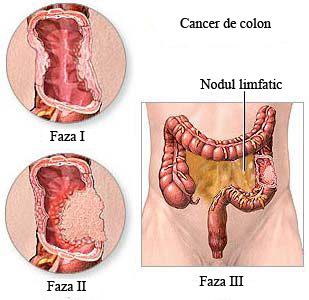 cancerul colorectal