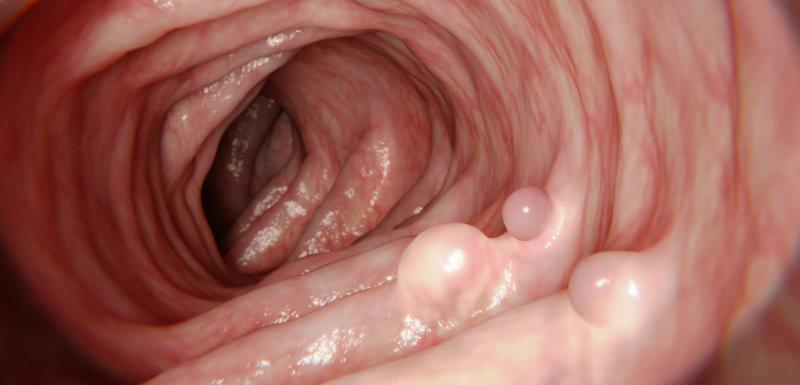 cancer colon bilan sanguin
