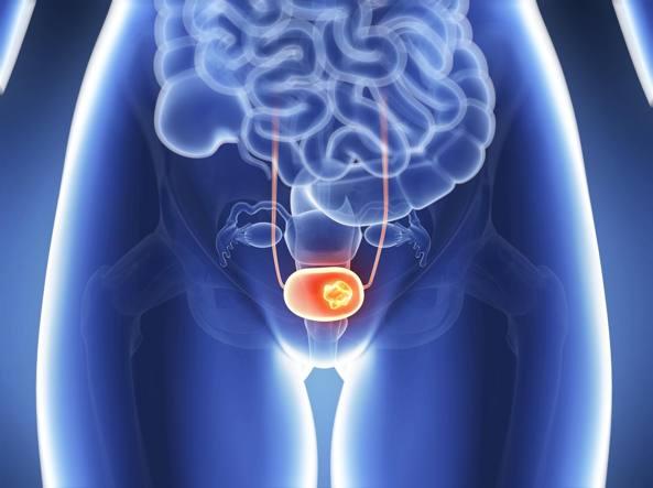 Uretroscopia prostatica