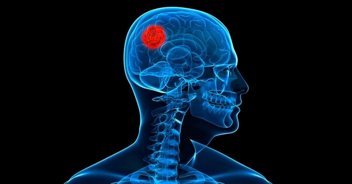 síntomas del cáncer de próstata chez l lhomme