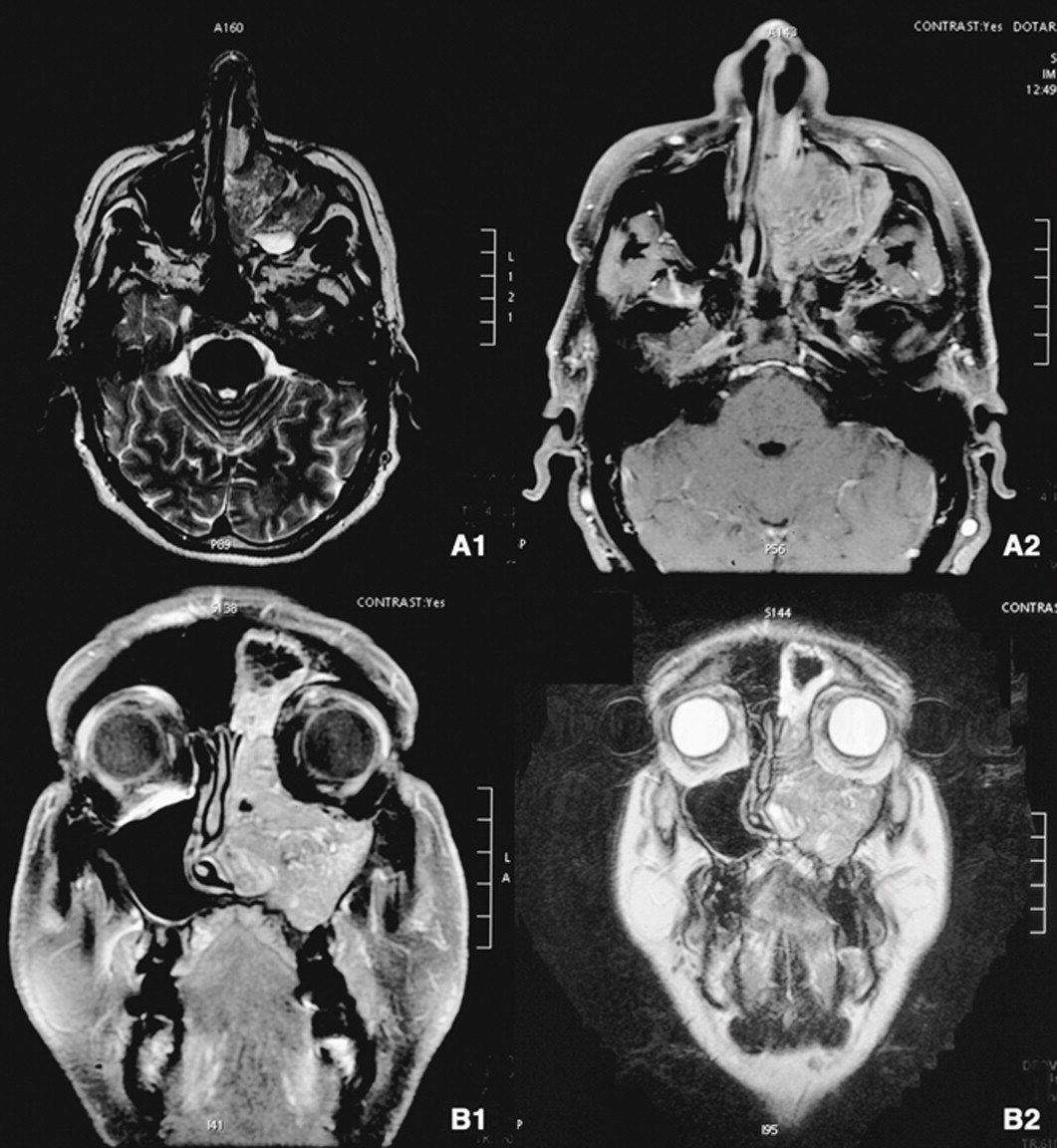 papiloma invertido es cancer oxiuros medidas de prevencion