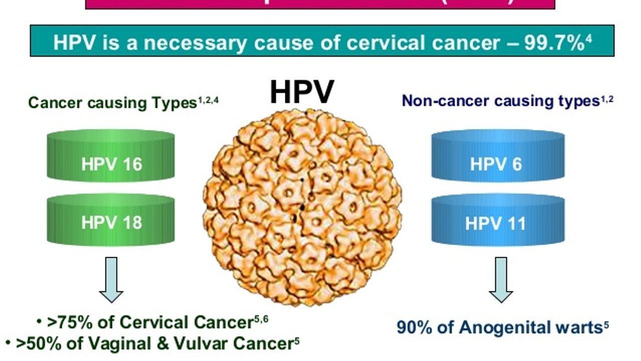 hpv in cancer cervix sirop pentru helminti