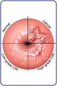 cancer epitelial cervical