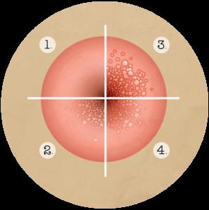 papillomavirus et symptomes
