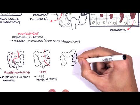 colorectal cancer pathophysiology oxiuros que tomar
