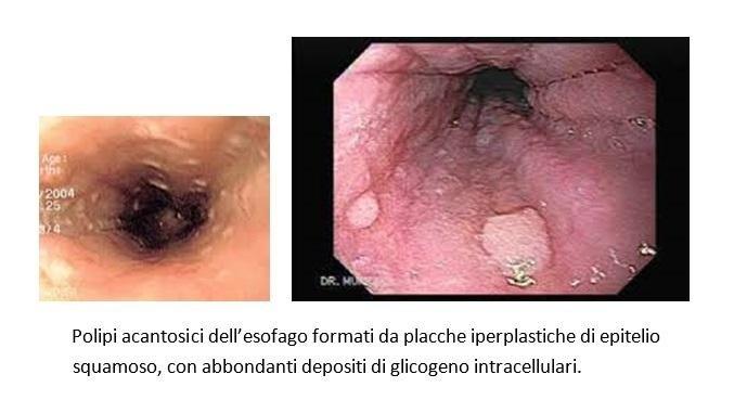 CARCINOMA - Definiția și sinonimele carcinoma în dicționarul Italiană