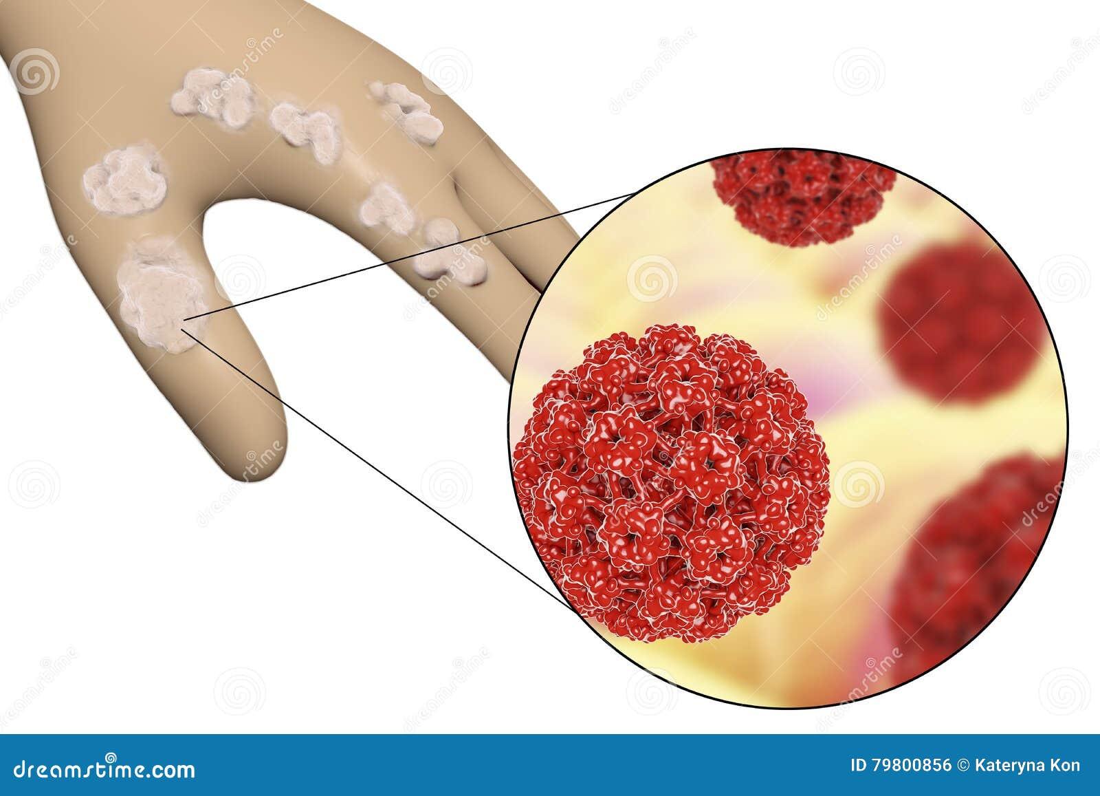 papillomavirus verrue main medicamente anti paraziti